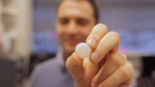 通過3D打印技術拯救你的發際線